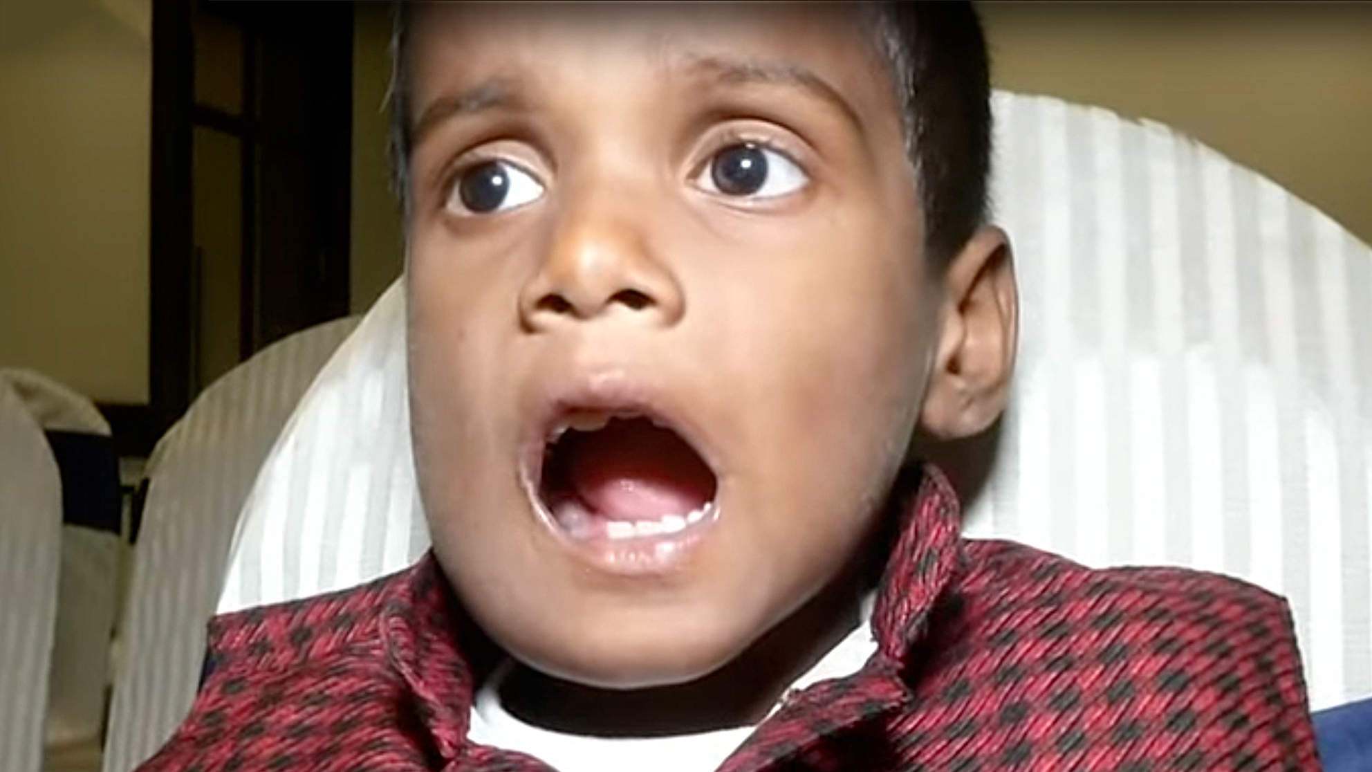Little Boy Has Over 500 Teeth Removed from His Mouth After He Complained of Jaw Pain and Swelling