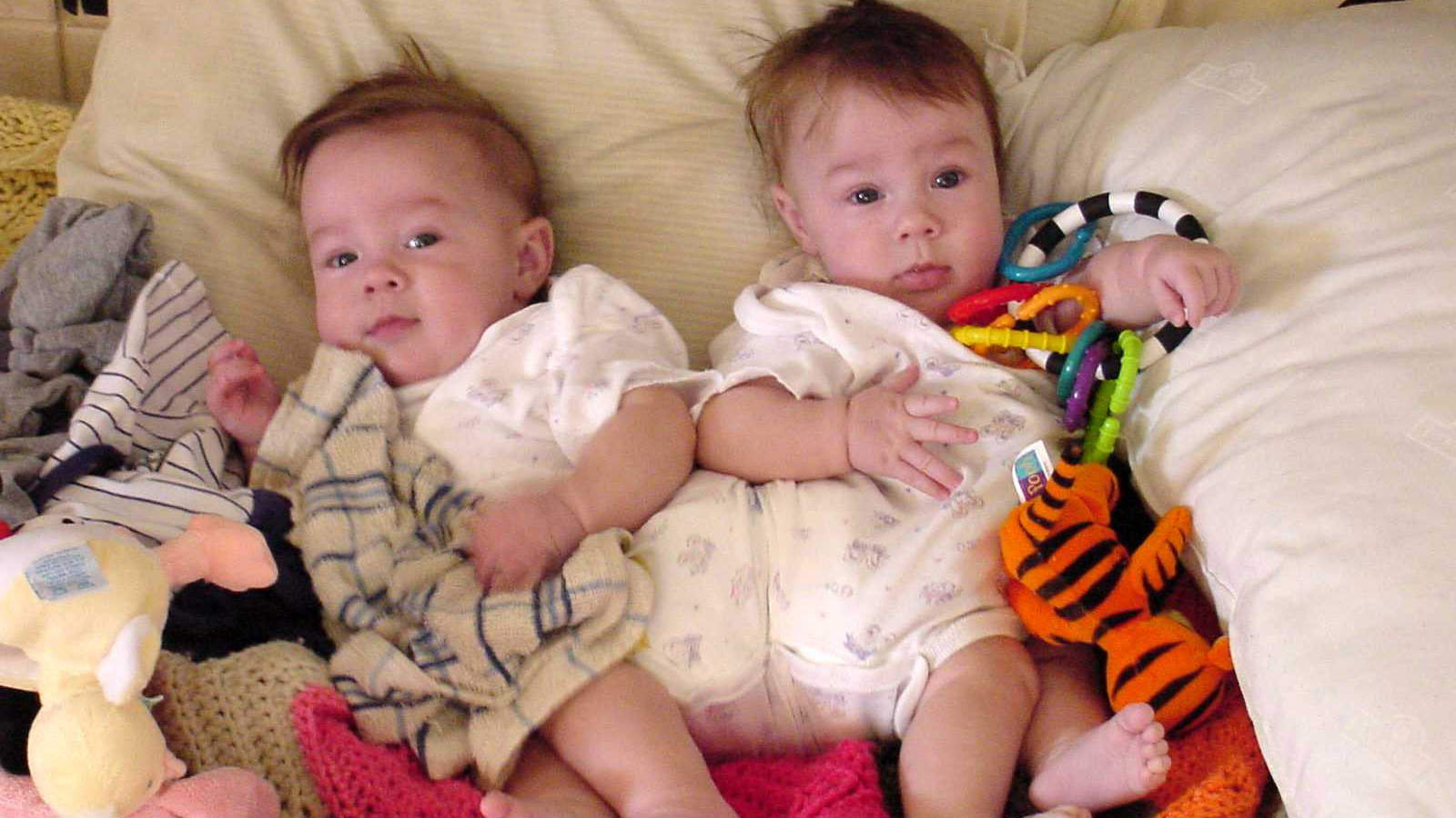 Conjoined Twins Separated in Risky Surgery at 7 Months Old Now Thriving at Age 17