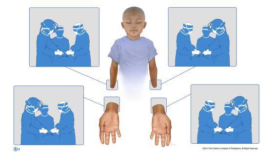 Watch This Amazing Child Get a Bilateral Hand Transplant
