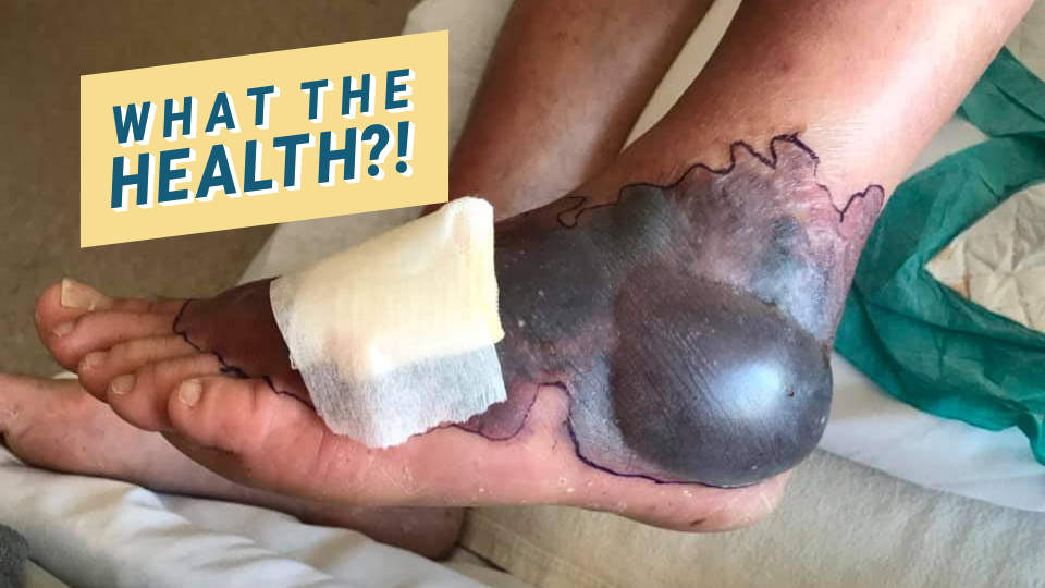 A Flesh-Eating Bacteria Nearly Took This Man's Foot After He Visited Florida—See the Horrifying Photos