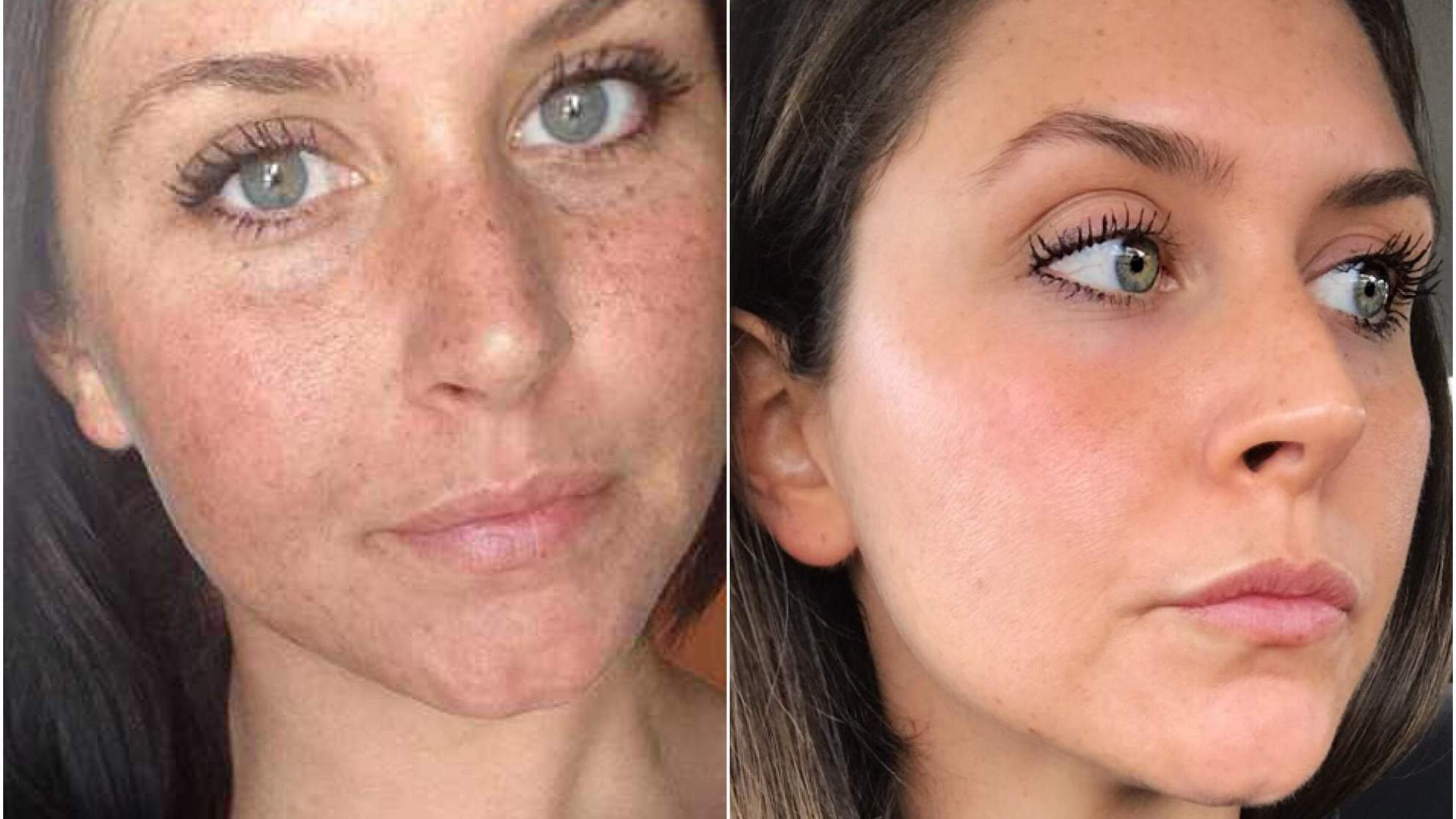 The Exact Anti-Aging Products That Helped Heal Years of Sun Damage on This Woman's Face