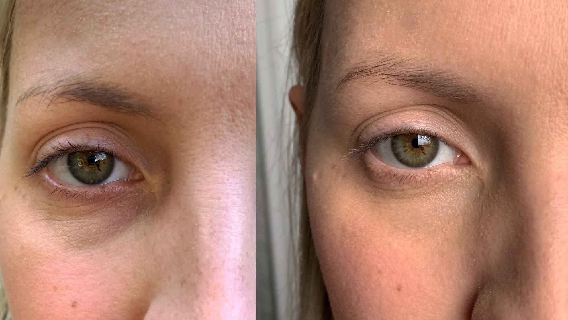 The Eye Gel That Helped Majorly Lighten My Undereye Circles