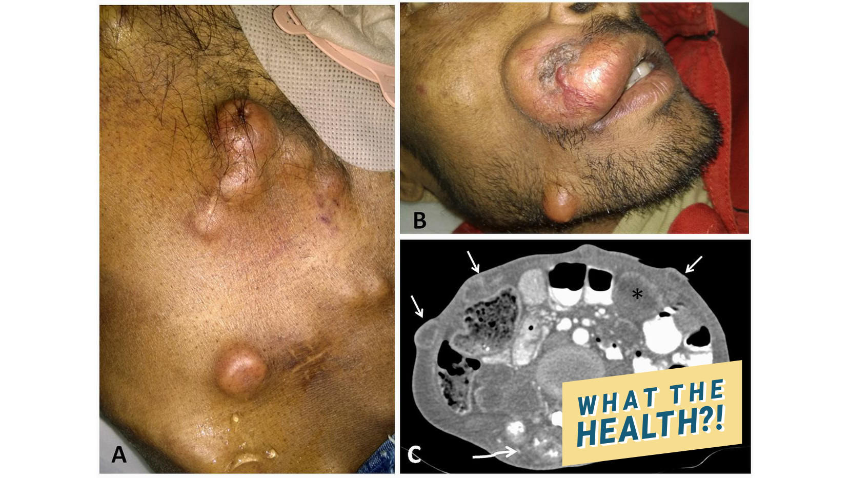 wth Cutaneous metastasis in adenocarcinoma rectum