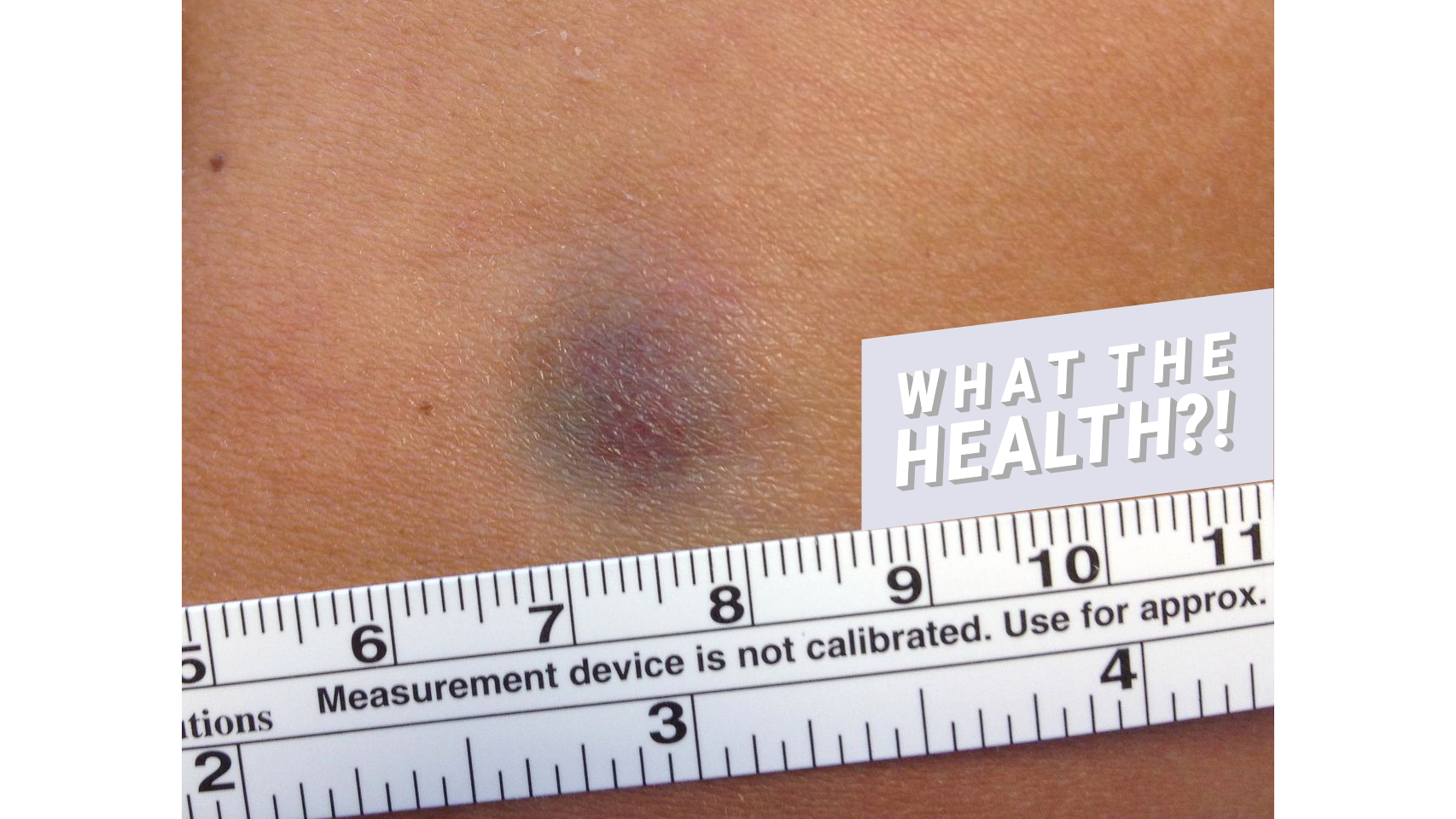 This Woman's Tiny Bruise Turned Out to Be a Rare Form of Skin Cancer