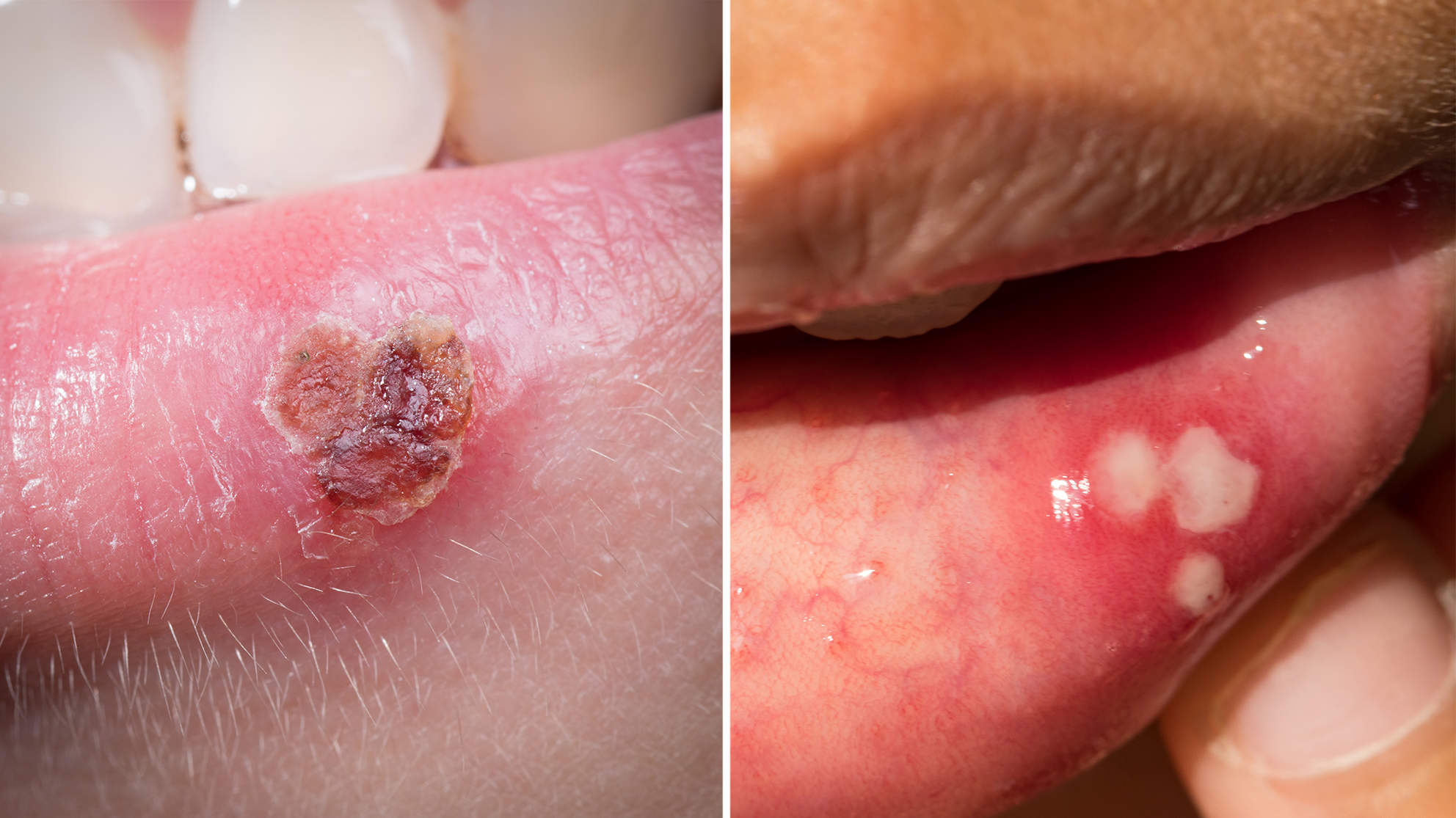 Is It a Canker Sore or a Cold Sore–and How Do You Get Rid of It?