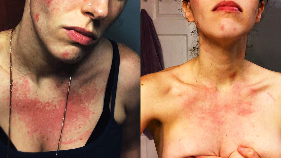 flesh eating bacteria skin health Rachel star