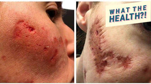 A Flesh-Eating Bacteria Caused Parts of This Woman's Face to Fall Off—and Doctors Are Baffled