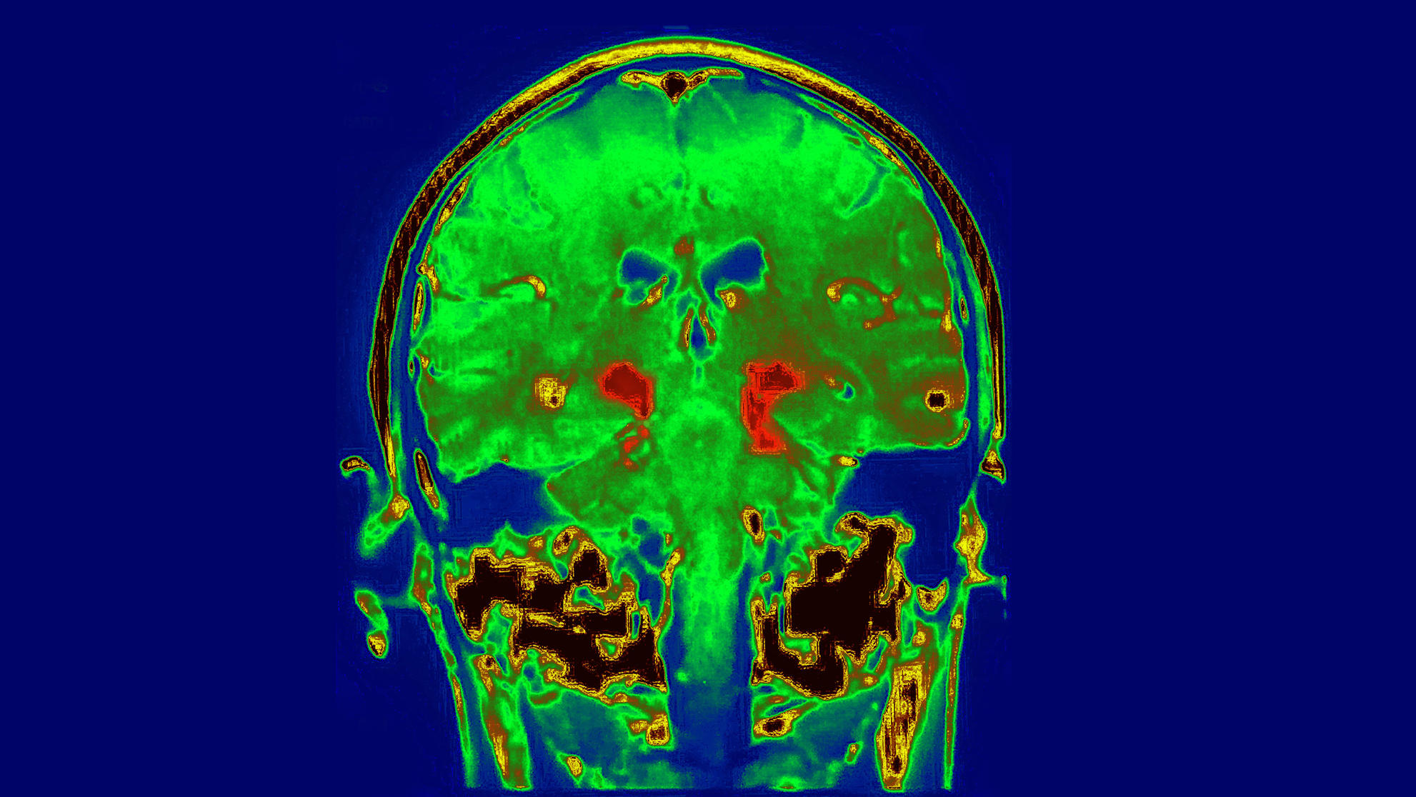 hepatitis-parkinson-brain-scan
