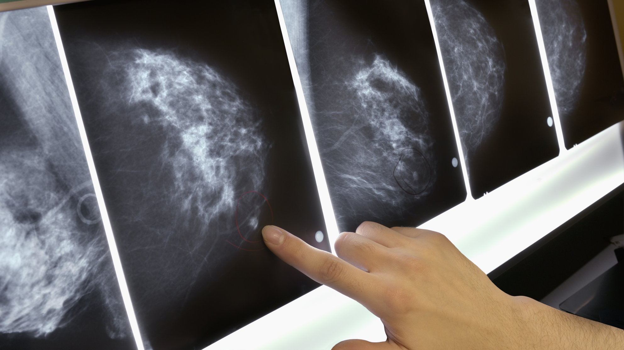 What To Expect If Youre Having A Mammogram - Health-7964