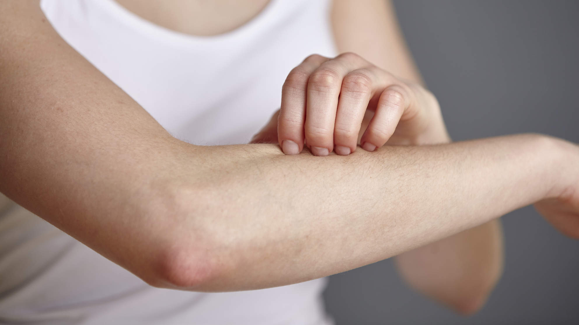 eczema-itch-scratch-skin-arm