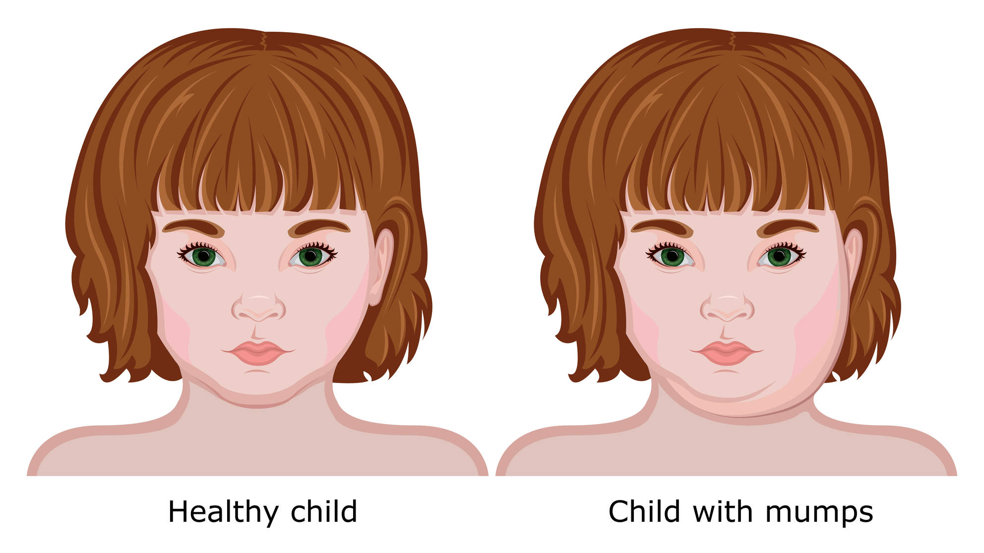 mumps symptoms signs what do mumps look like