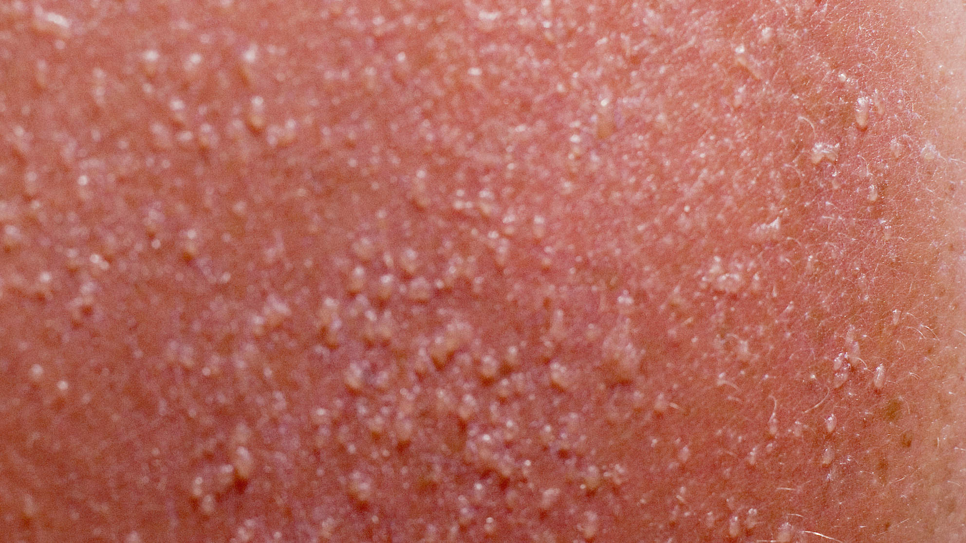 What Exactly Is Sun Poisoning–and How Do You Make Sure It Doesn't Happen to You?