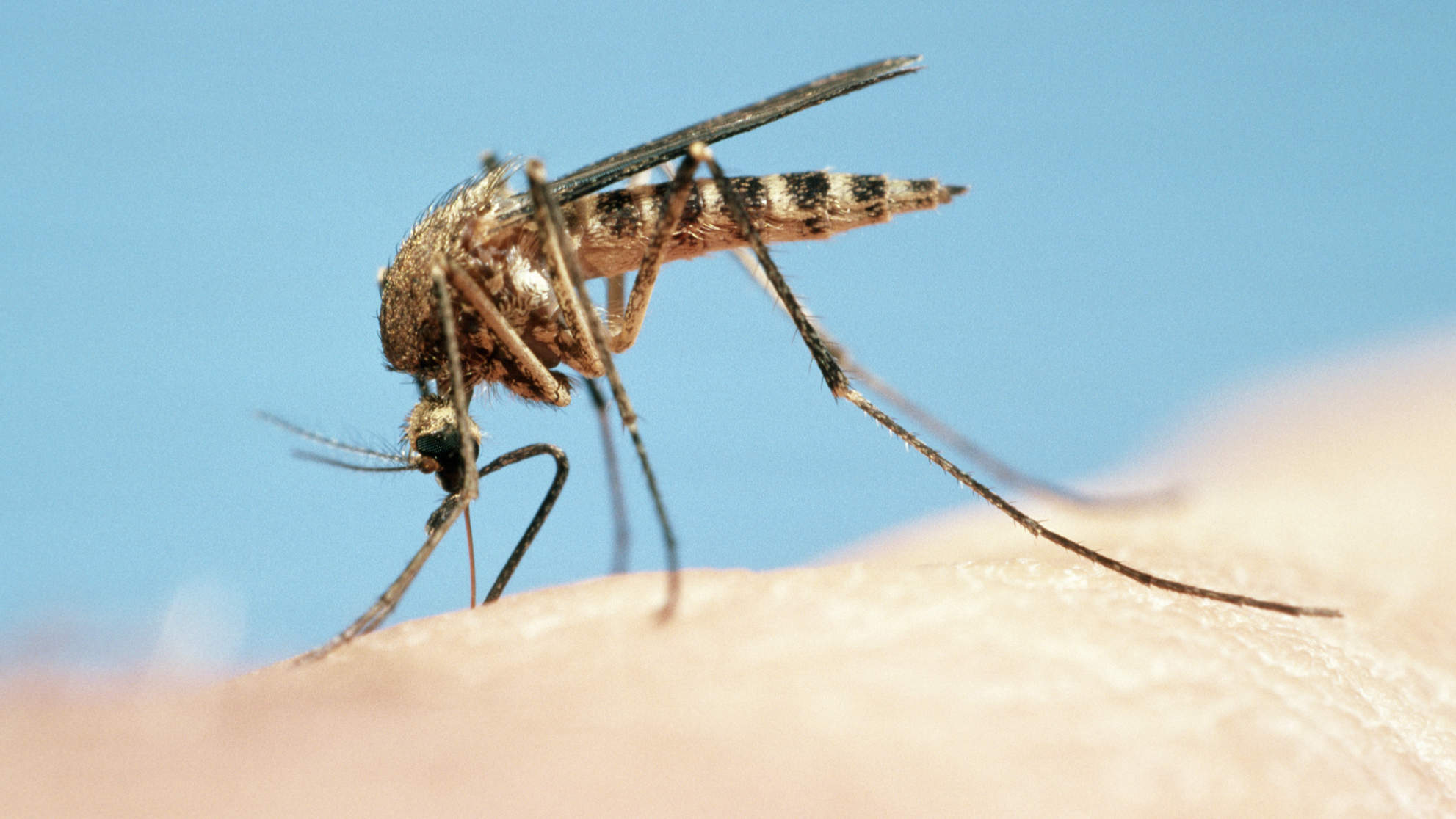 Mosquito bite skeeter syndrome
