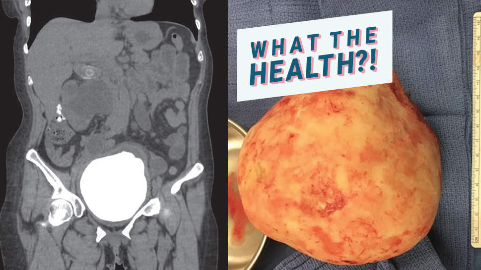 This Woman's Excruciating Stomach Pain Was Actually a Grapefruit-Sized Bladder Stone