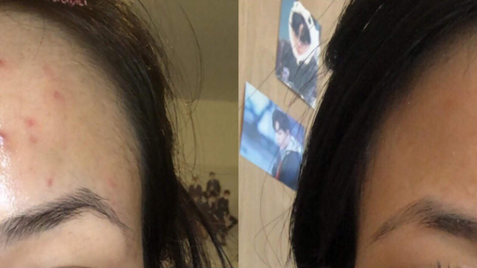 acne before-after woman health beauty dermatology skin product