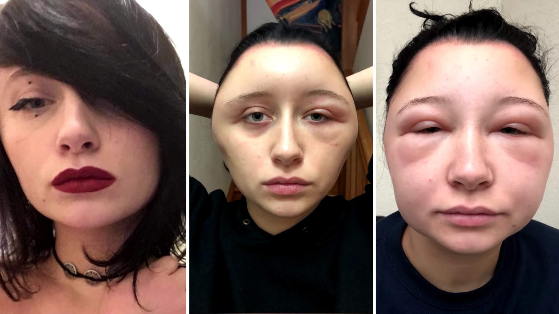 This Woman's Head Doubled in Size Due to a Crazy Allergic Reaction to Hair Dye
