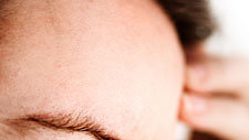 5 Surprising Things That Give You Headaches