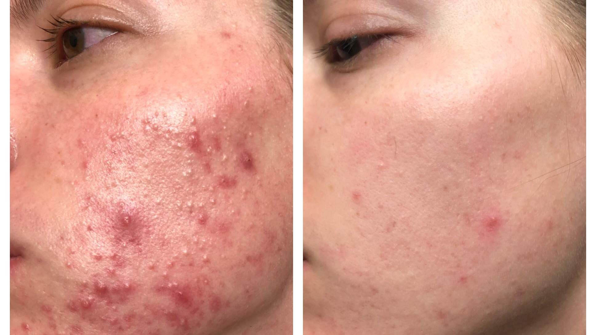acne hemp hemp-oil face beauty skin cyst cystic beauty product routine