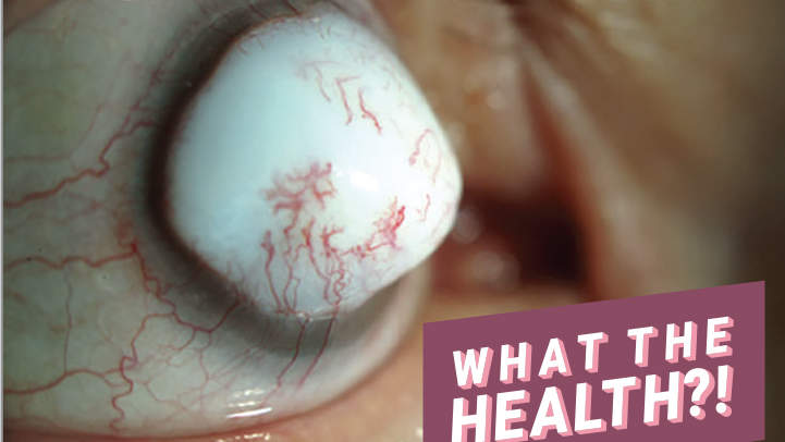 The Huge Bump on This Man's Eye Turned Out to Be a Rare Complication of Cataract Surgery