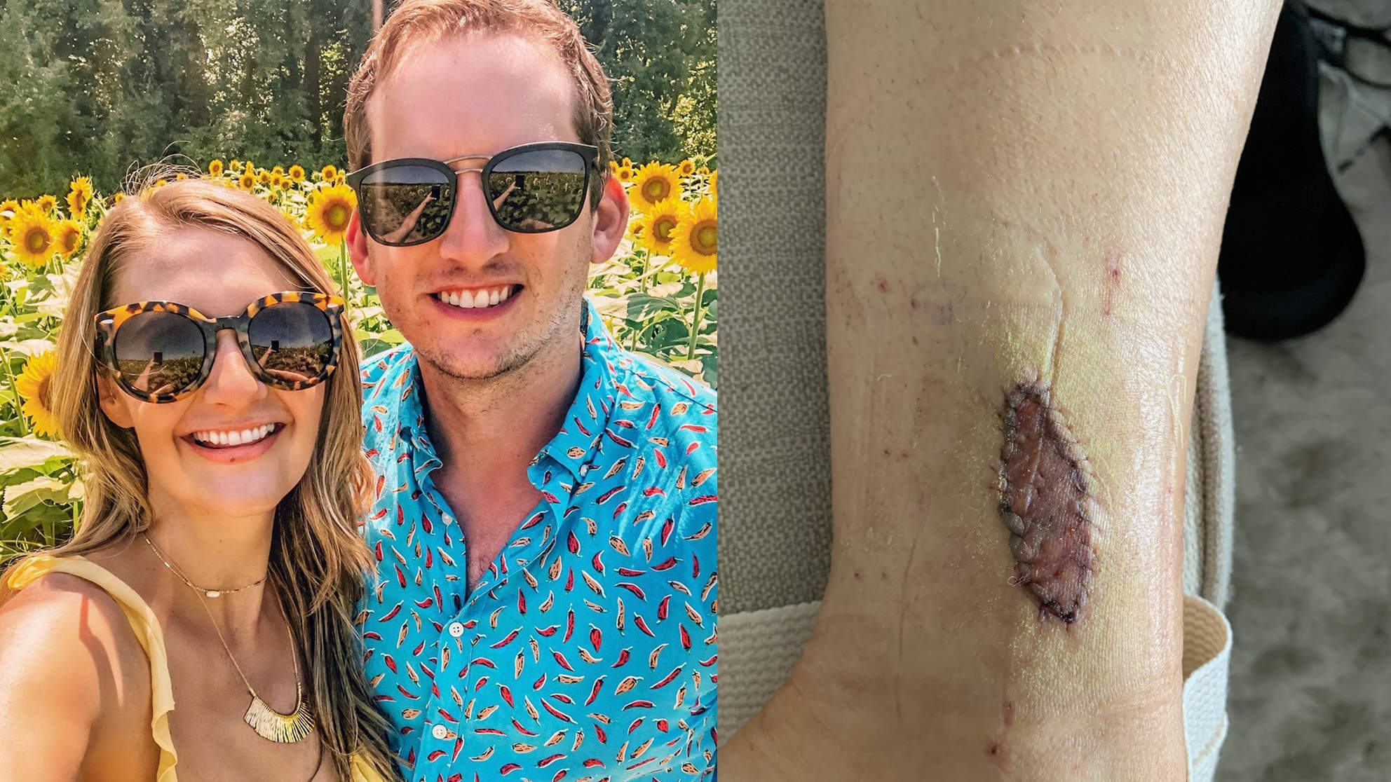 This Influencer's BirthmarkTurned Out to Be Melanoma: 'I Could Feel It Growing'