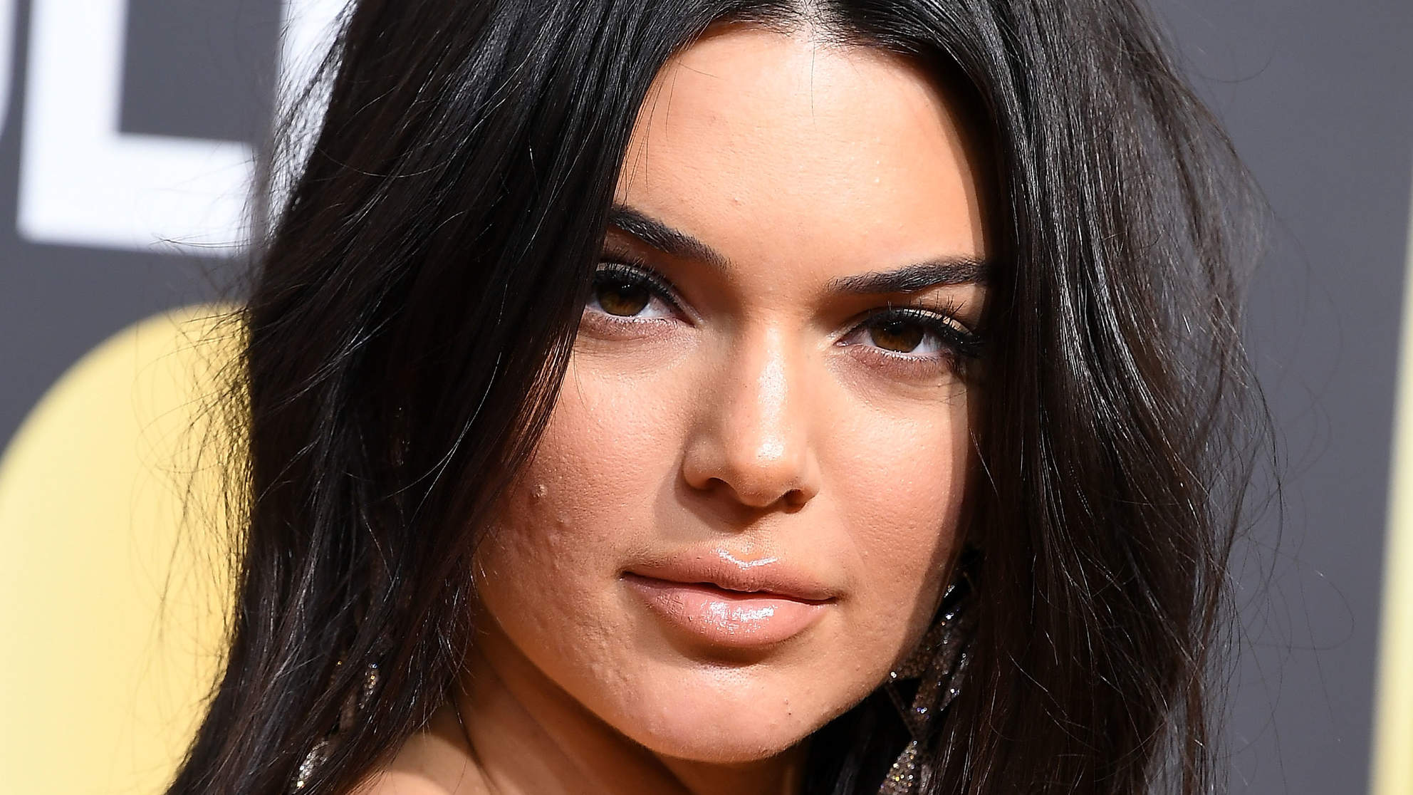 Kendall Jenner Was Hospitalized Before Attending Vanity Fair Oscars Party: Report