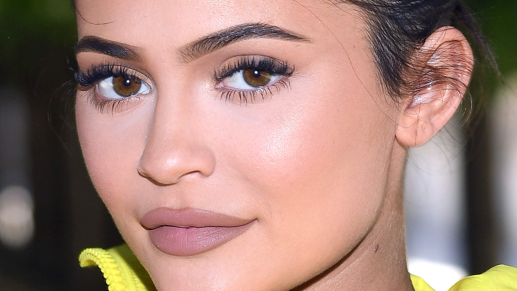 Kylie Jenner Looks Totally Different After Having Her Lip Filler Removed
