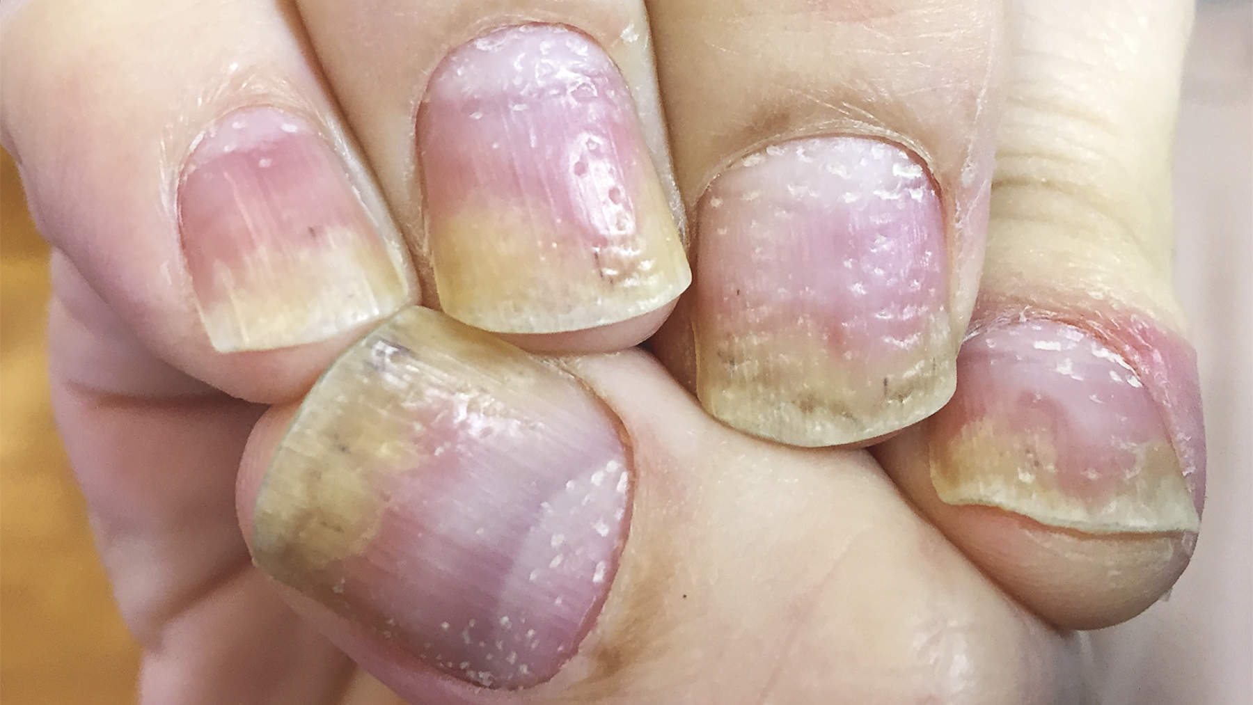 This Man's Pitted Nails Turned Out to Be a Chronic Skin Condition