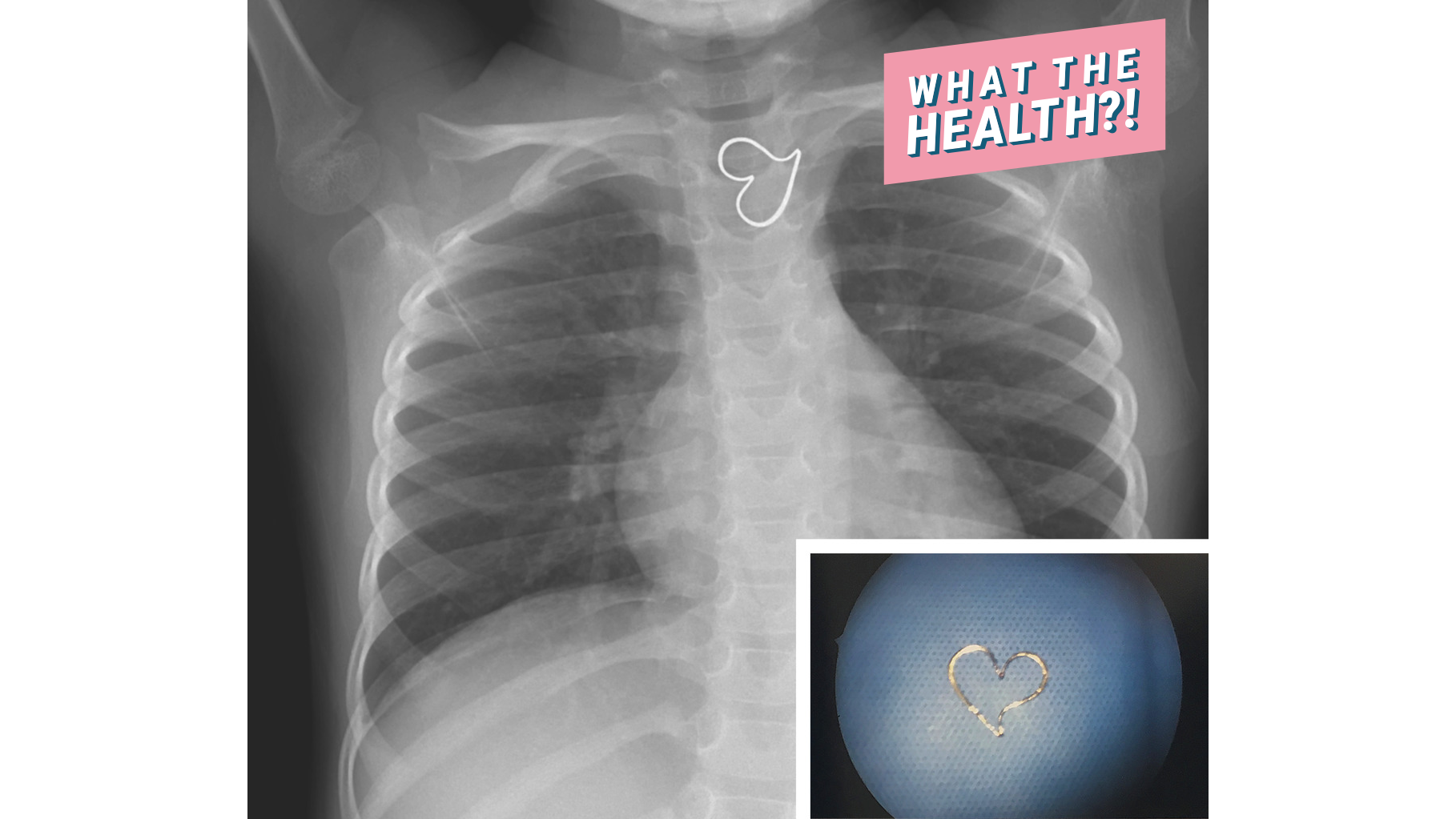 A Perfect Heart Shape Showed Up on This Girl's X-Ray