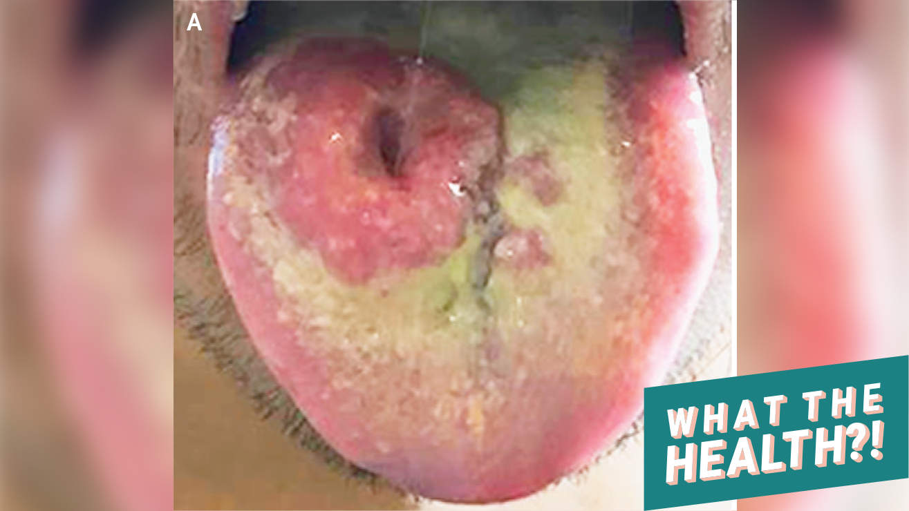 Valley Fever Fungus Caused the Huge Lesion on This Man's Tongue