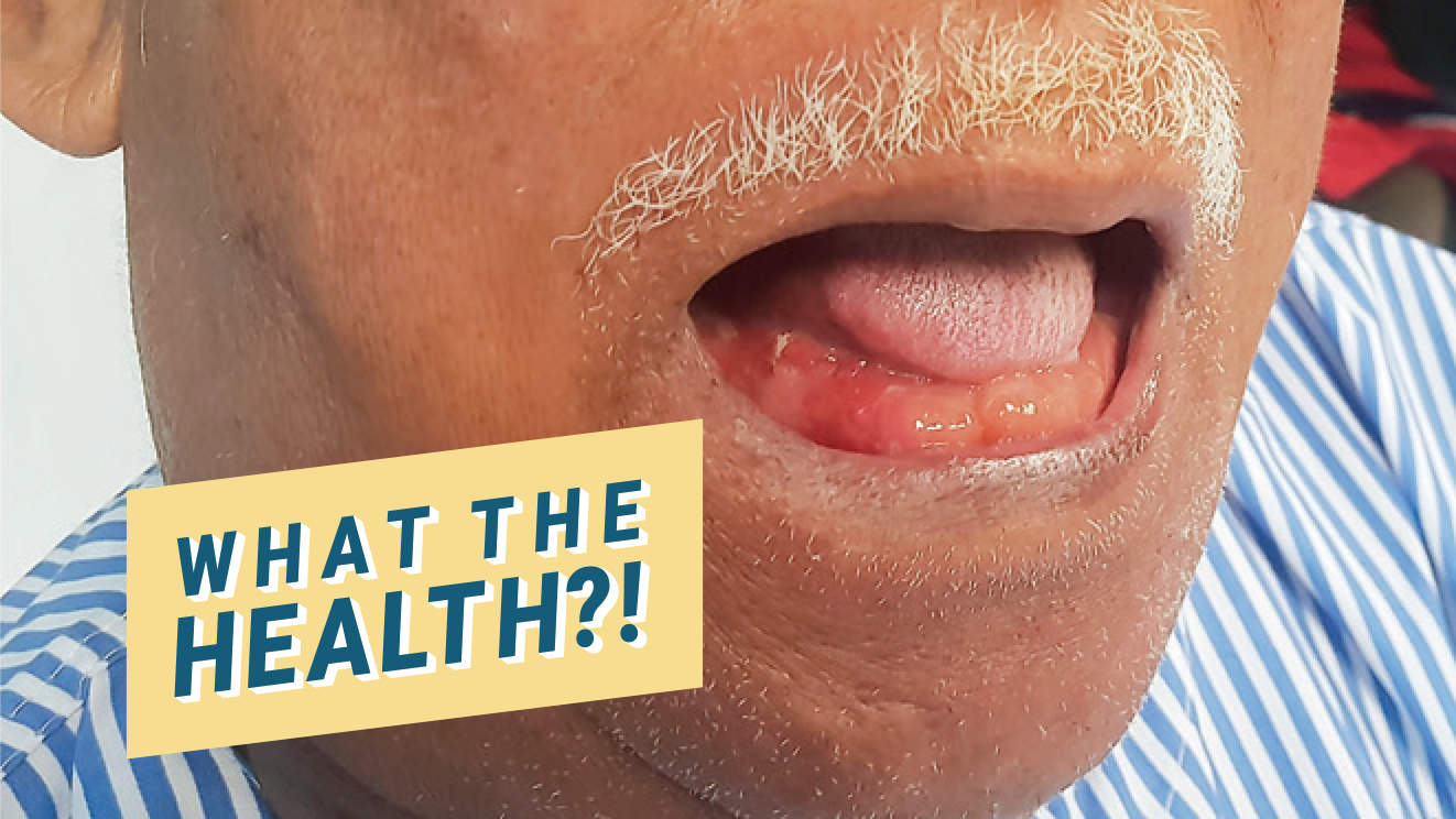 Rare Skin Infection Caused This Man to Have a 'Double Tongue'