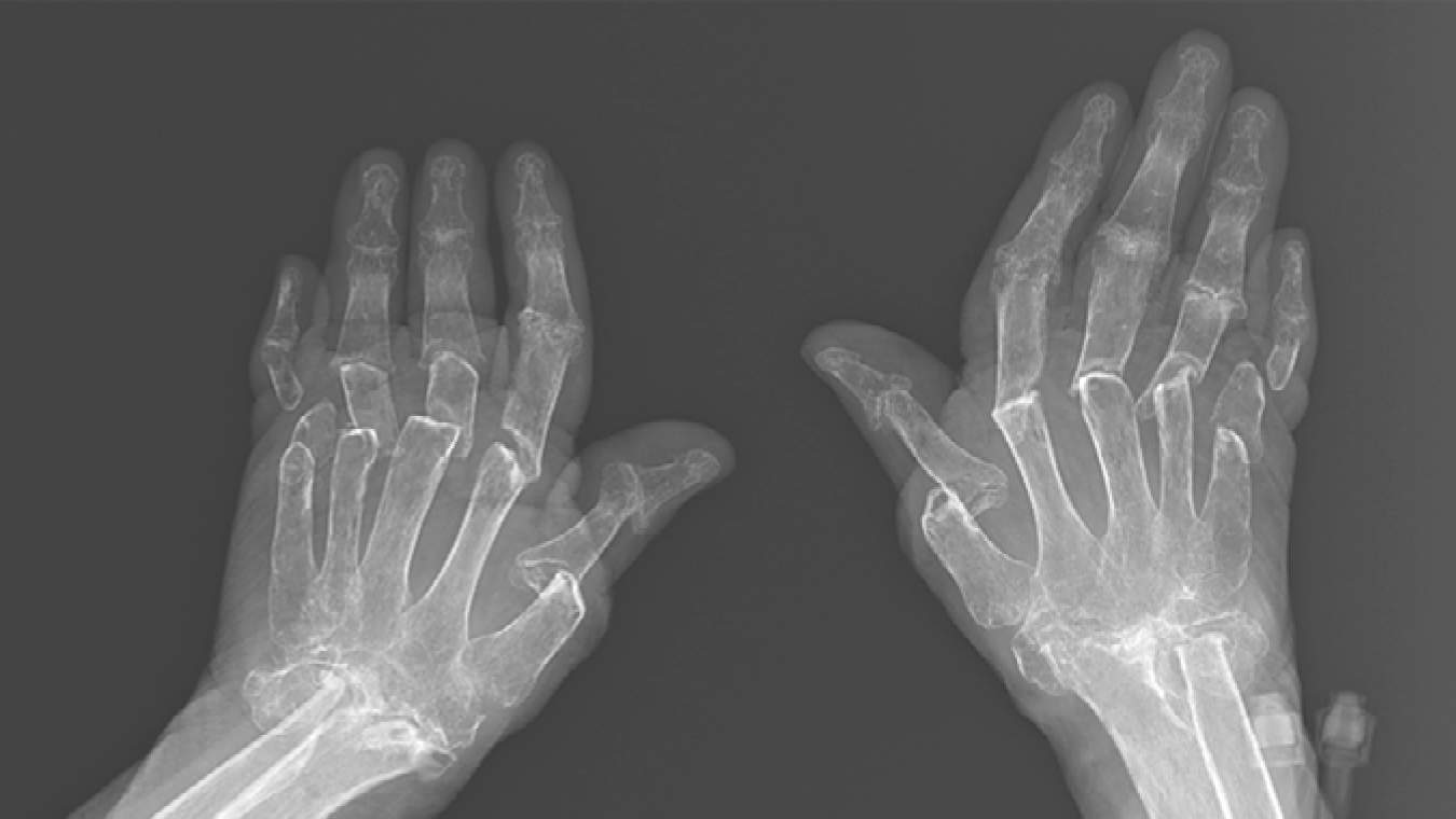 This X-Ray of a Woman's 'Telescoping Fingers' Shows the Painful Reality of Living With Rheumatoid Arthritis