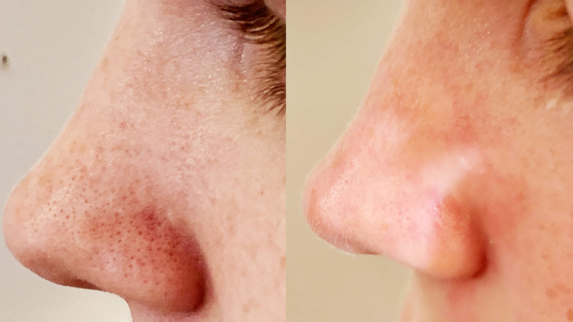 blackheads-removed-before-after