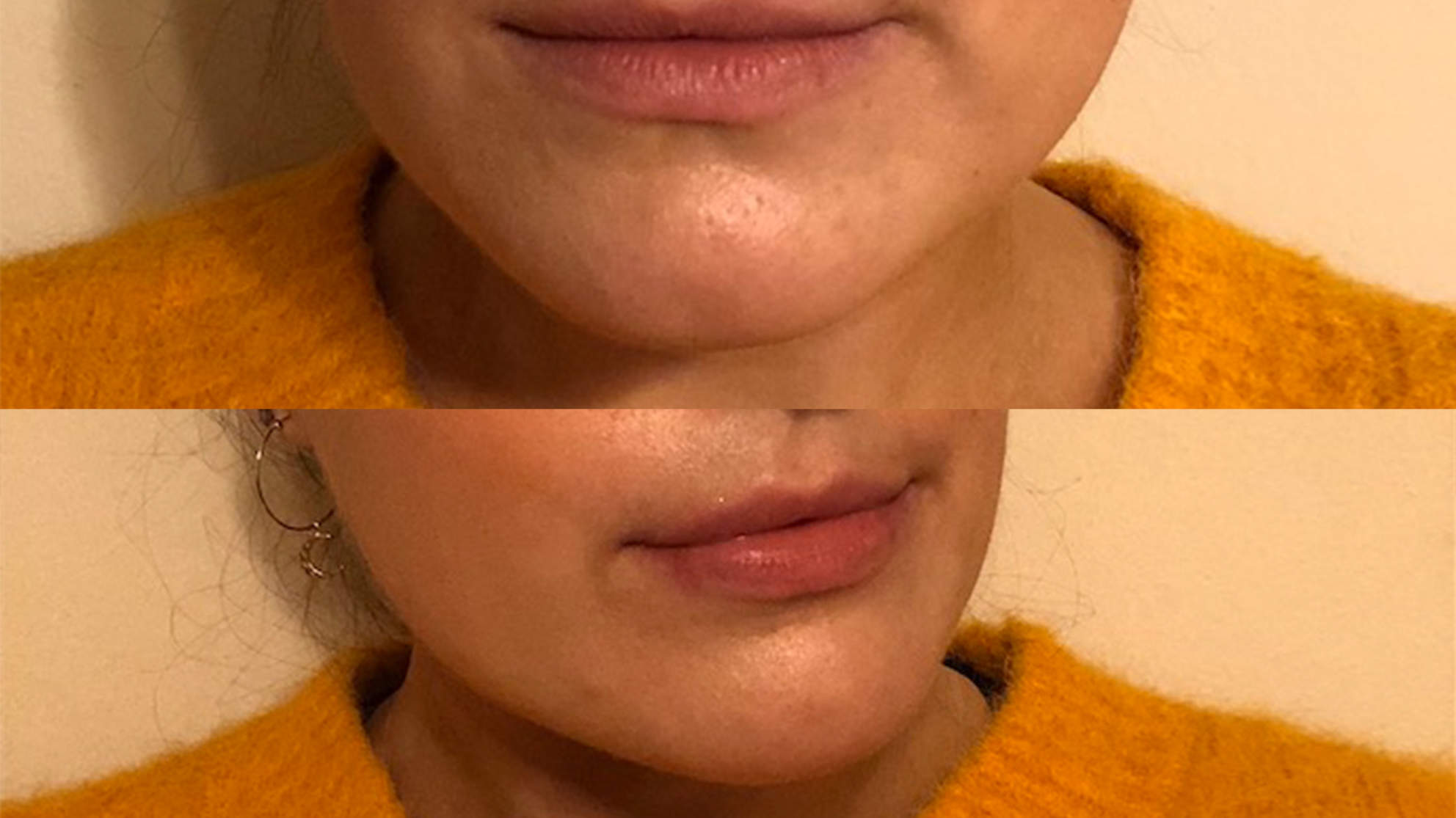 Plumped Lips Before and After