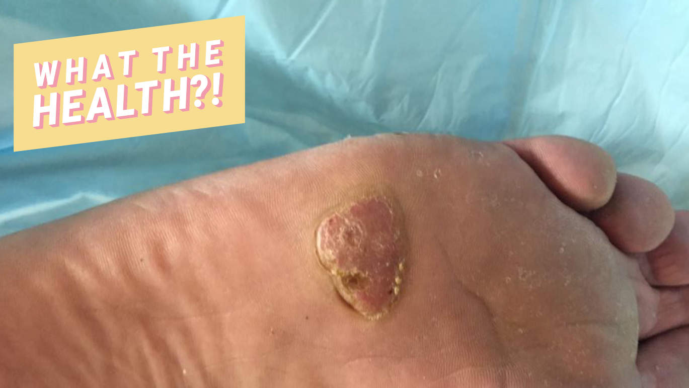 This Man Discovered the 20-Year-Old Wart on His Foot Was Actually Skin Cancer