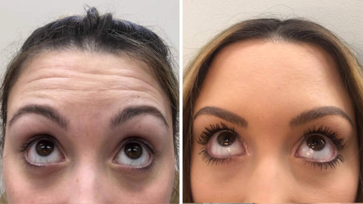 I Got Botox at 22—Here's Why I Don't Regret It