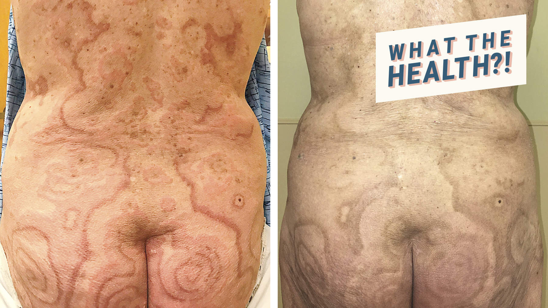 This Woman's Red, Ring-Shaped Rash Turned Out to Be a Sign of Anal Cancer