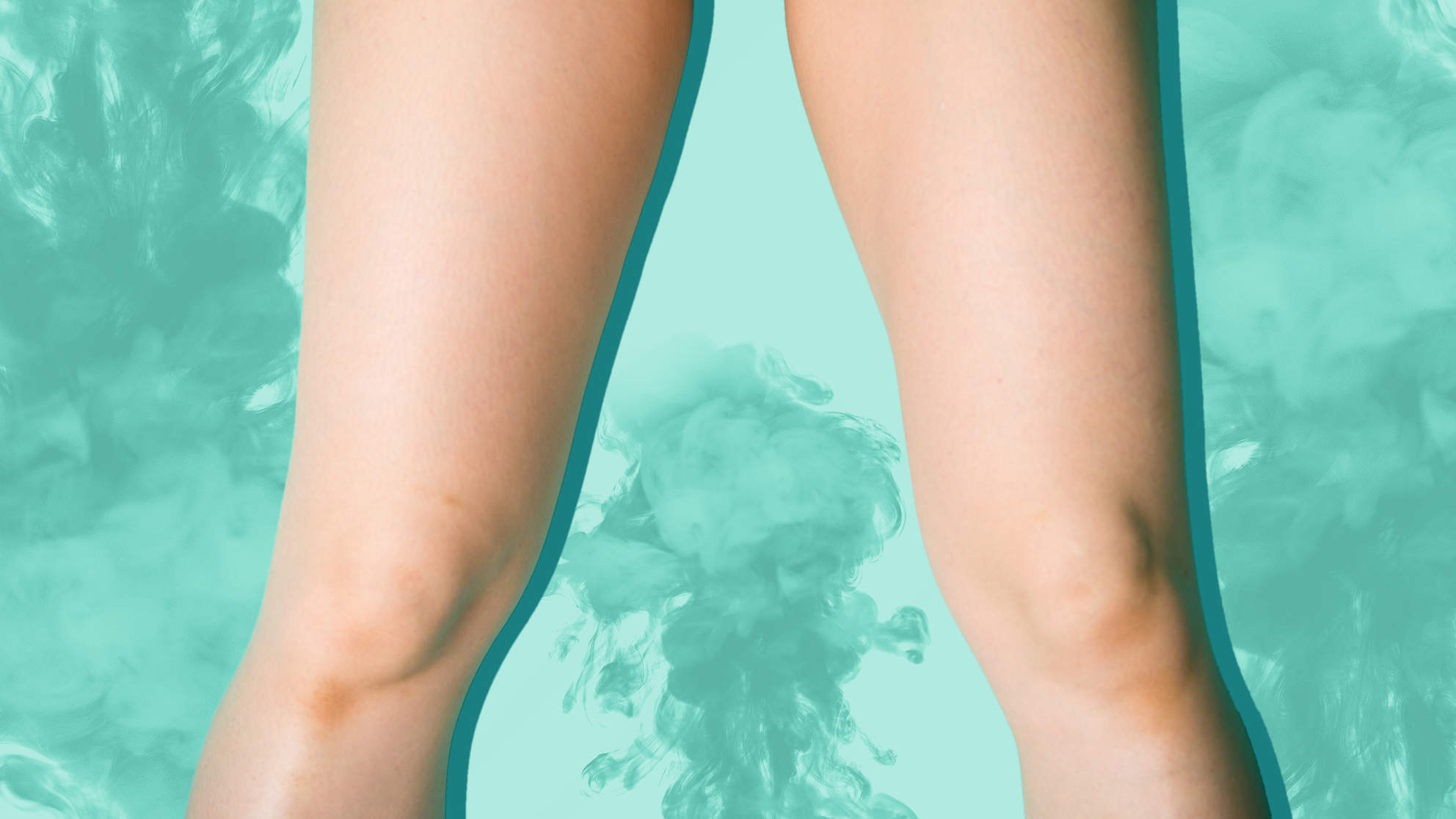 A Vaginal Steam Treatment Gave This Woman a Second-Degree Burn on Her Vagina