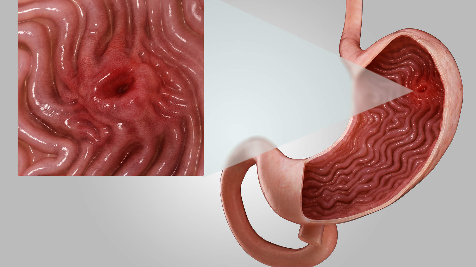 What Is a Stomach Ulcer? Here's What You Need to Know About Symptoms and Treatment