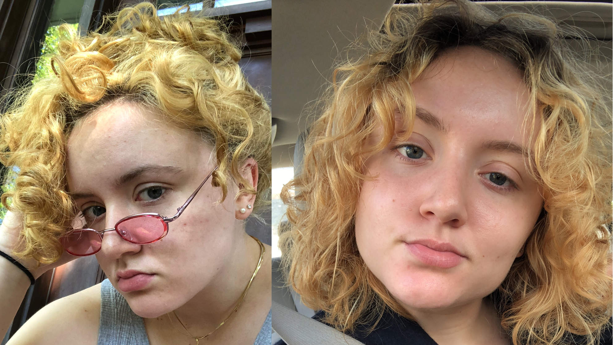 tg-before-after skin transformation