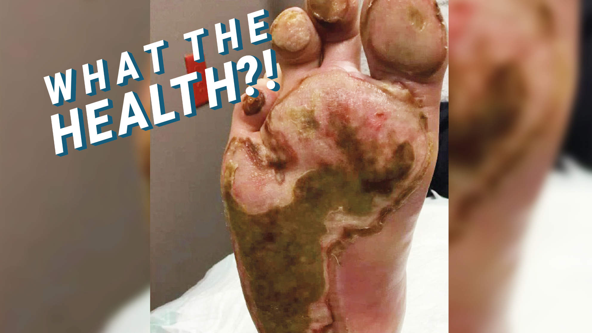 People Are Burning Their Feet On Hot Pavement—Here's How To Keep Yourself Safe