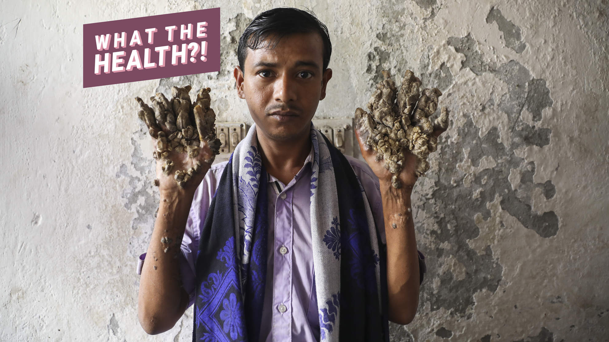 'Tree Man' Abul Bajandar Is Back in the Hospital. What Is Epidermodysplasia Verruciformis?