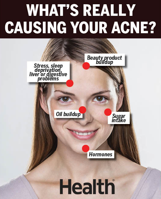 Acne Face Mapping: What Acne Face Mapping Can Tell You About