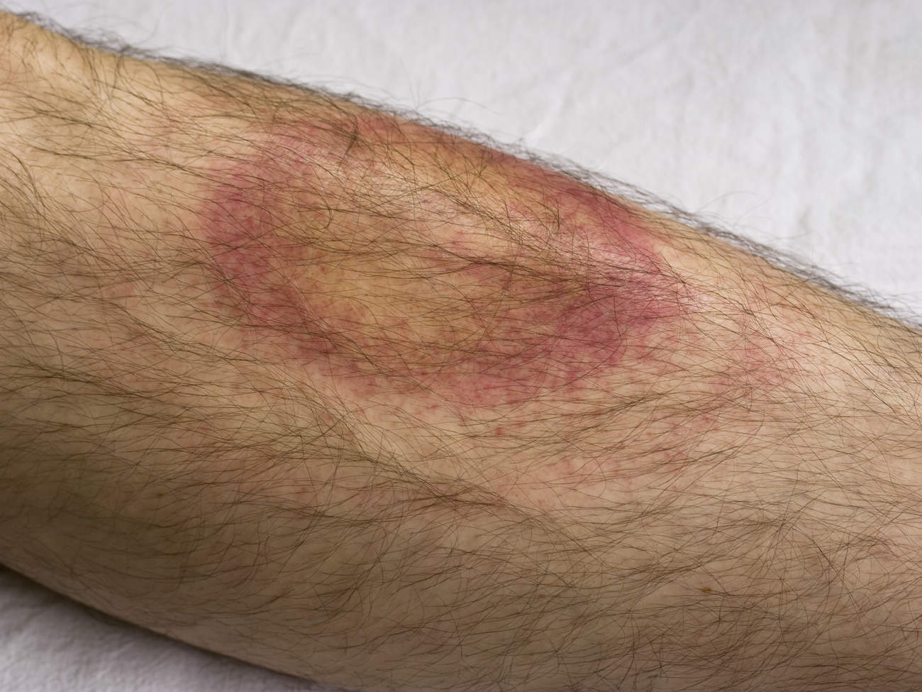 lyme-disease-bullseye-rash-man