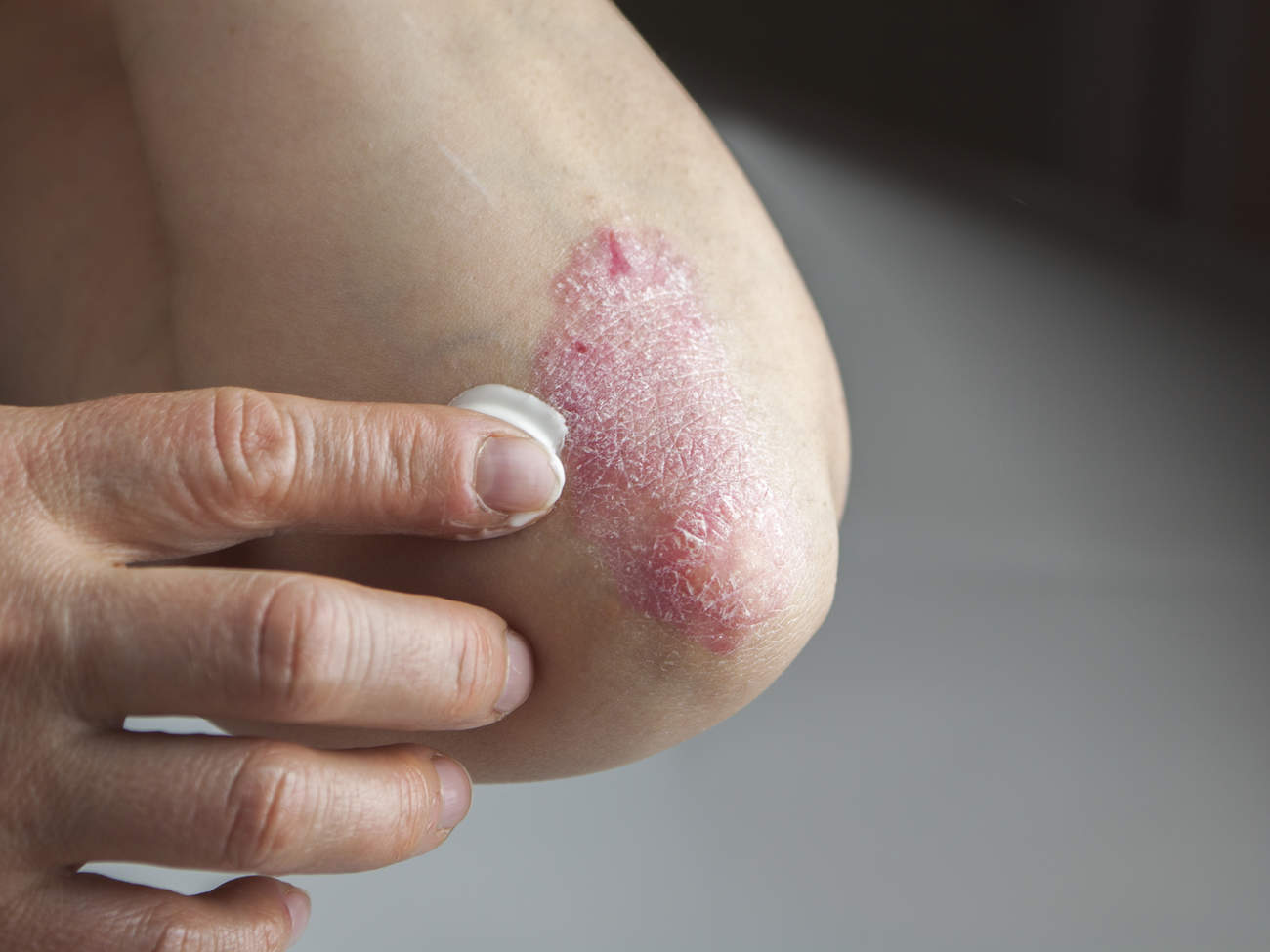 psoriasis-condition-center-elbow