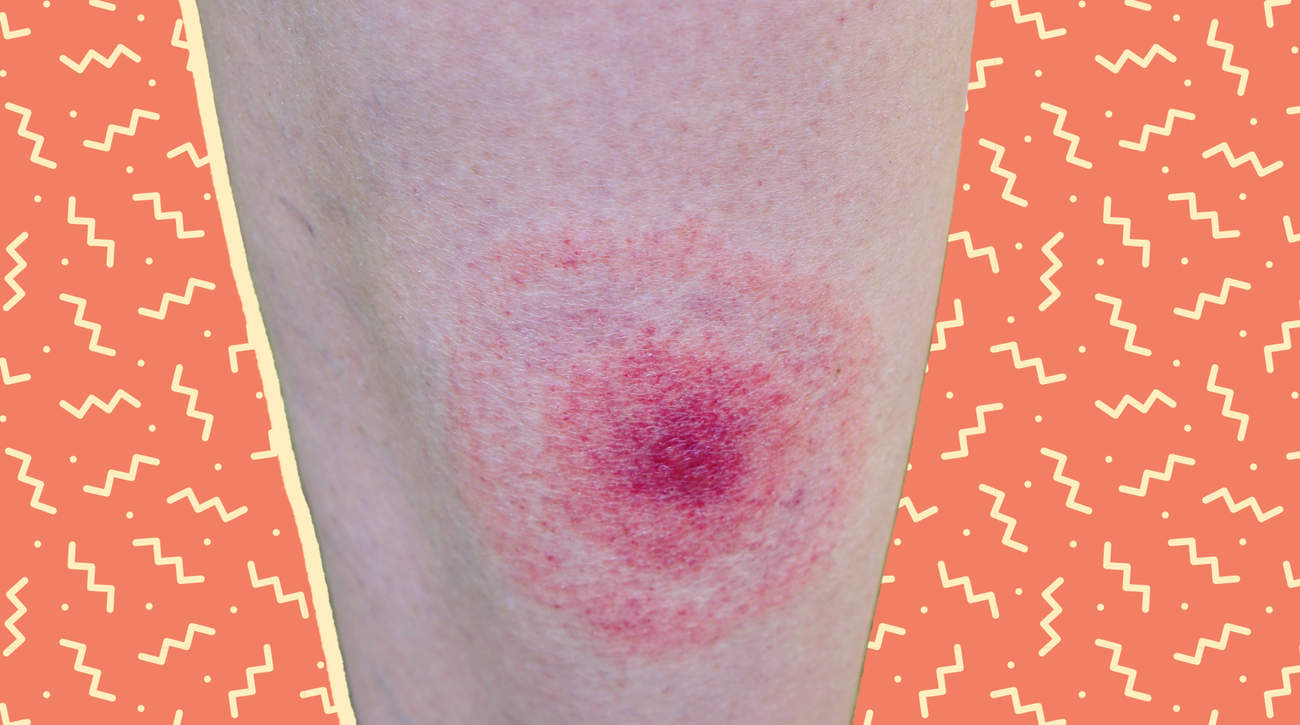 tick-bite skin bite bug outdoors rash hive lyme-disease lyme