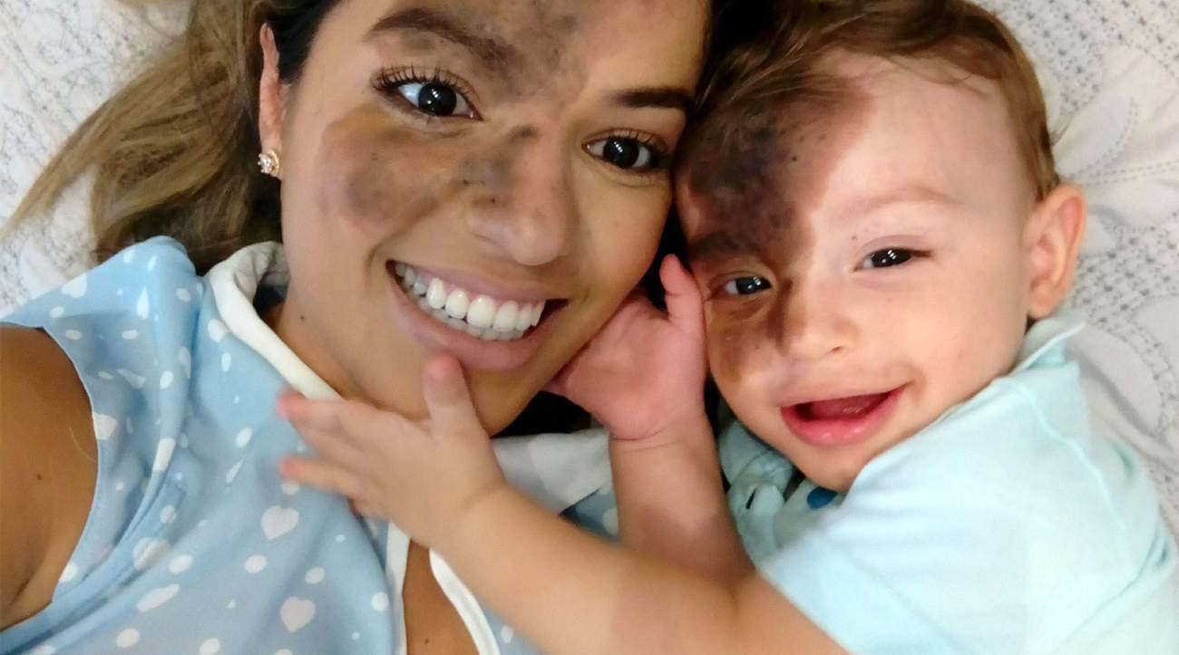 Mom Paints Large Birthmark on Her Face to Match Son: 'I Have Never Treated Him as Different'