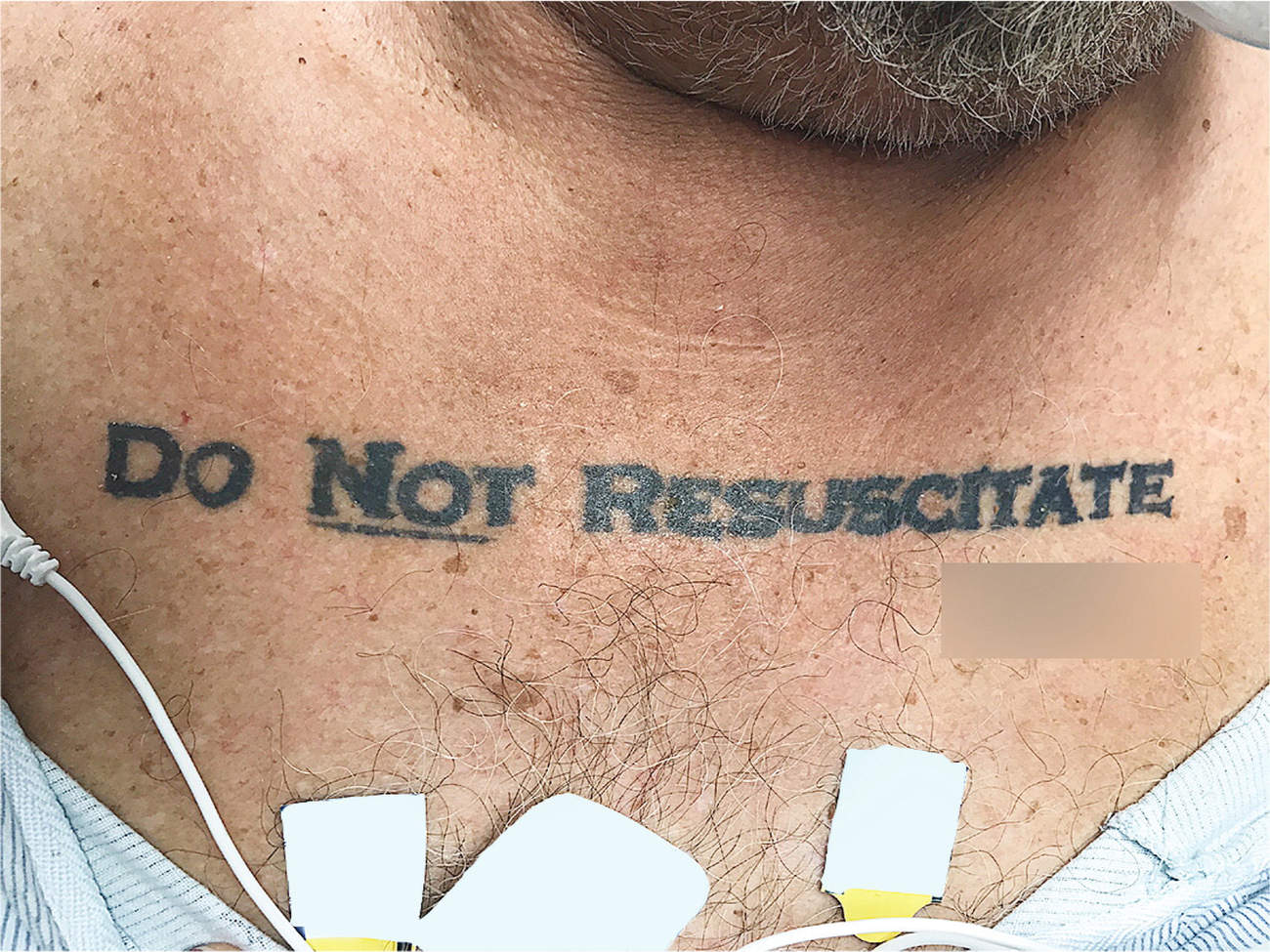 Doctors Unsure if They Should Save Patient with 'Do Not Resuscitate' Tattoo