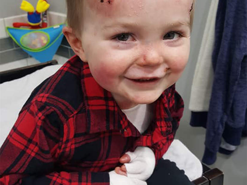 Mom of Toddler with Rare Skin Disease That Causes Tears at the Slightest Friction Speaks Out