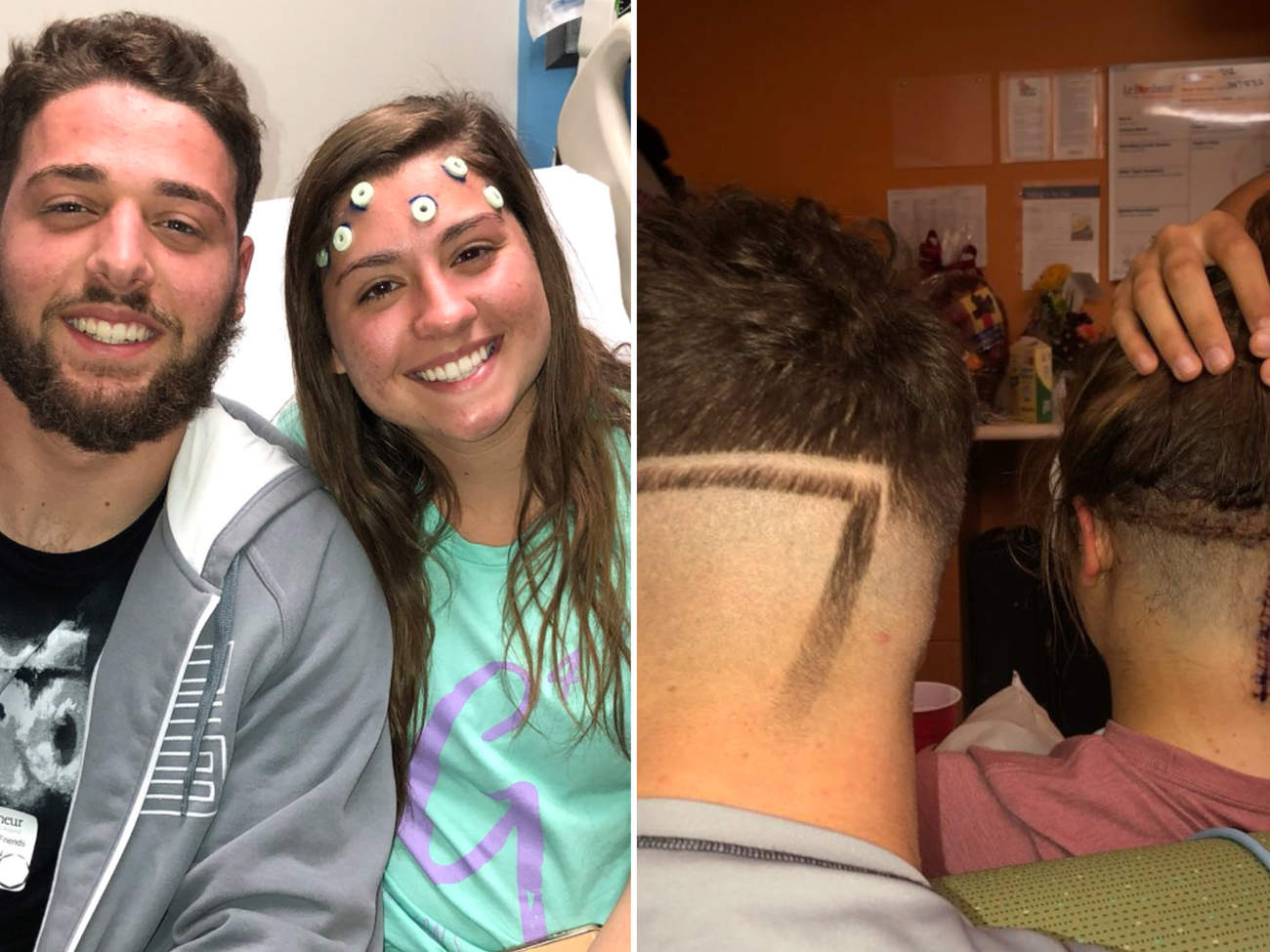19-Year-Old Brother Gets a Haircut to Match His Sister's 10-Inch Scar from Brain Tumor Surgery