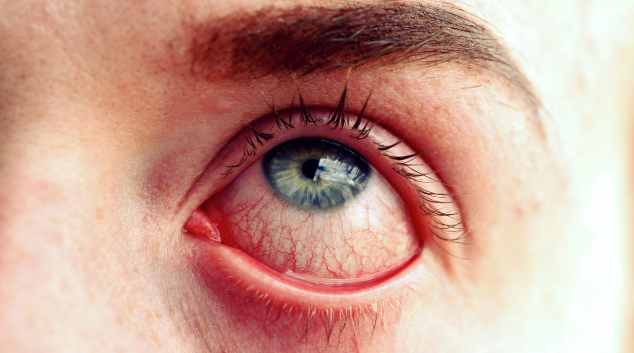 chemical injuries eyes accidental prescribed erectile dysfunction cream dry eye condition